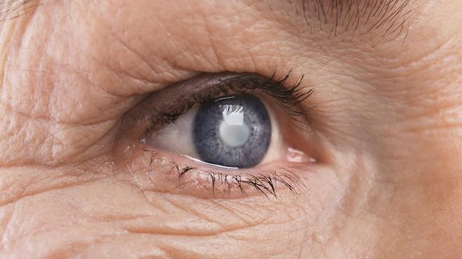 Mờ mắt do biến chứng tiểu đường: Đừng trì hoãn, kẻo mù lòa! - Ảnh 3.