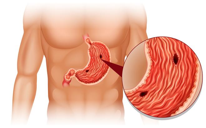 4 yếu tố nguy cơ gây ung thư dạ dày: Bạn cần khám sớm để phát hiện có mầm bệnh hay không