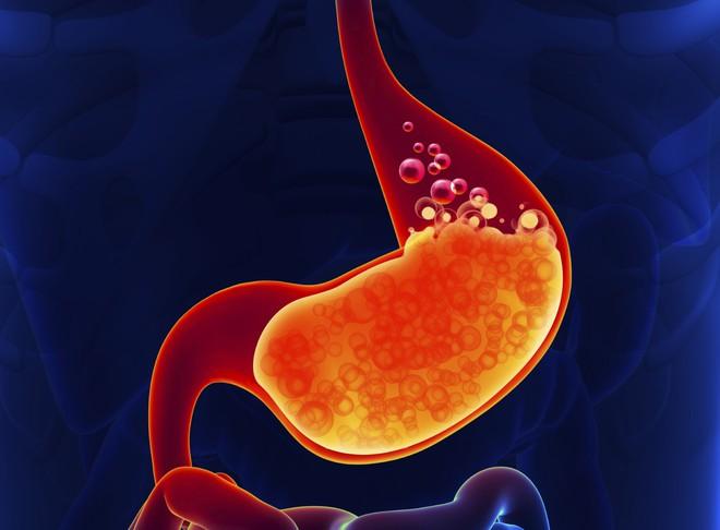 4 yếu tố nguy cơ gây ung thư dạ dày: Bạn cần khám sớm để phát hiện có mầm bệnh hay không - Ảnh 4.