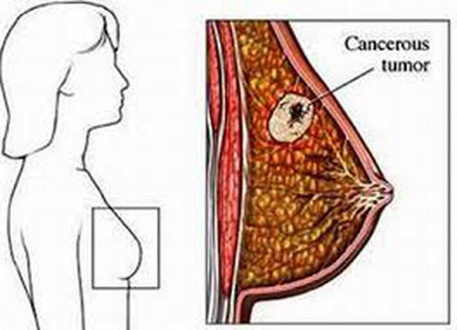3 dấu hiệu ung thư vú đang tiến triển trong người: Học ngay cách tự khám để phát hiện sớm - Ảnh 2.