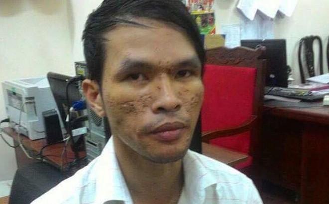 Kẻ hành hạ dã man em bé Campuchia được tại ngoại do mắc bệnh nan y