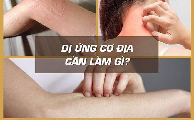 Bệnh dị ứng cơ địa, nổi mề đay mẩn ngứa và cách chữa hiệu quả nhờ bài thuốc nam sau