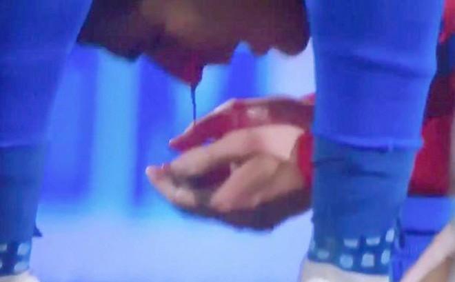 Đánh cùi chỏ máu chảy ròng trên mặt đối thủ, Ramos bị tổng sỉ vả