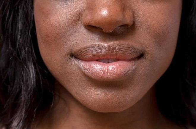 14 loại mùi hôi báo hiệu sự bất ổn của cơ thể - Ảnh 2.