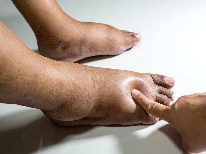 5 hiểu nhầm về công dụng của bồn ngâm chân hồng ngoại - Ảnh 2.