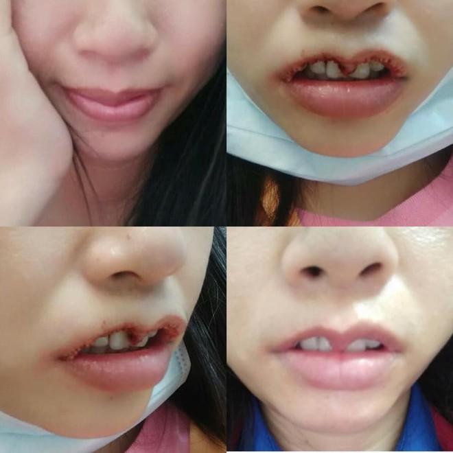 Kết cục không bình thường dành cho cô gái trẻ đi cắt môi trái tim - Ảnh 1.
