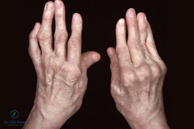Viêm đa khớp dạng thấp là gì ? Nguyên nhân, triệu chứng và cách chữa bệnh - Ảnh 1.