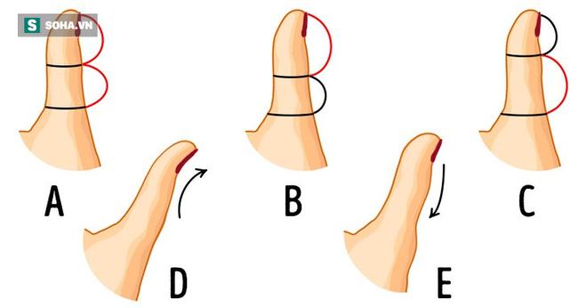 Nhìn hình dáng ngón tay cái, đọc vị khả năng thành công của mỗi người - Ảnh 1.