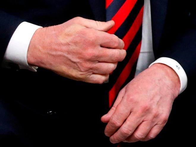 Nhiếp ảnh gia tiết lộ về bí mật đằng sau 17 bức ảnh lạ về Tổng thống Trump - Ảnh 6.