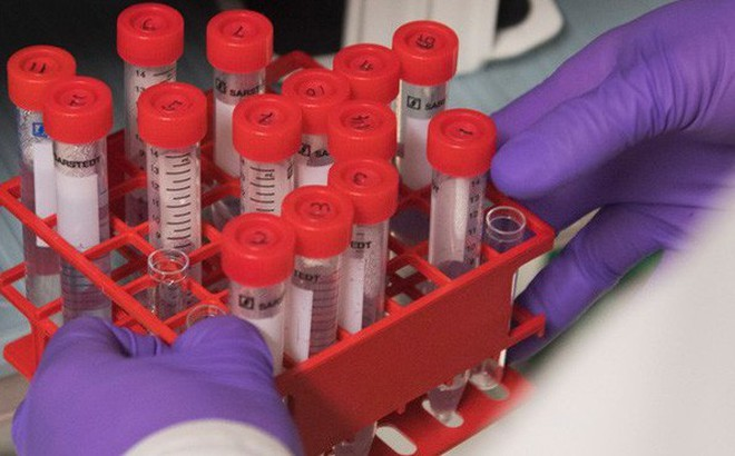 GĐ Ngân hàng Tế bào gốc: 7 bước của liệu pháp chữa ung thư 1 lần duy nhất - cực kỳ đắt đỏ