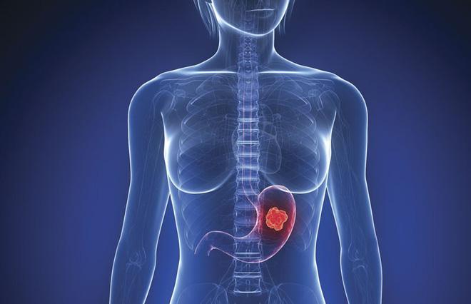 Ung thư dạ dày có tỷ lệ tử vong cao: Làm đủ 4 việc để sớm ngăn chặn mầm bệnh sinh sôi - Ảnh 1.
