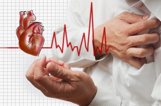 Đau ngực kèm khó thở, bệnh nhân trẻ tuổi phát hiện viêm cơ tim cấp biến chứng rối loạn nhịp nguy hiểm - Ảnh 1.