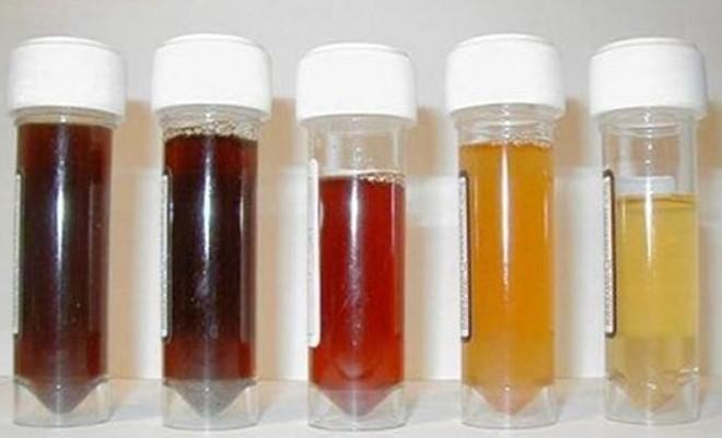 Chuyên gia mách nhìn máu nước tiểu đoán bệnh - Ảnh 1.
