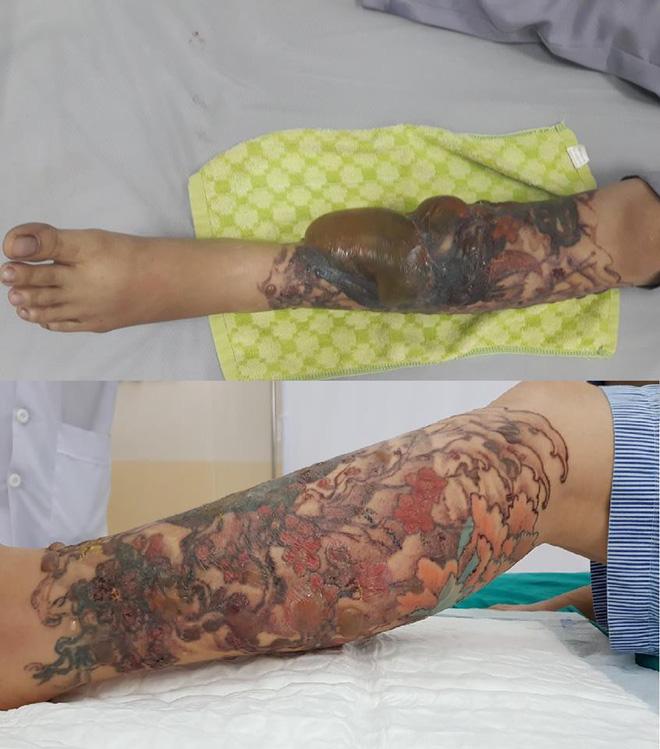 Xăm dễ, xoá không hề dễ: Cô gái trẻ suýt mất chân vì xoá hình xăm lạ  - Ảnh 1.