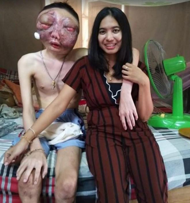 Dù chồng bị ung thư với khuôn mặt biến dạng, vợ vẫn một lòng ở bên chăm sóc: 3 năm, em vẫn yêu anh như ngày đầu - Ảnh 3.