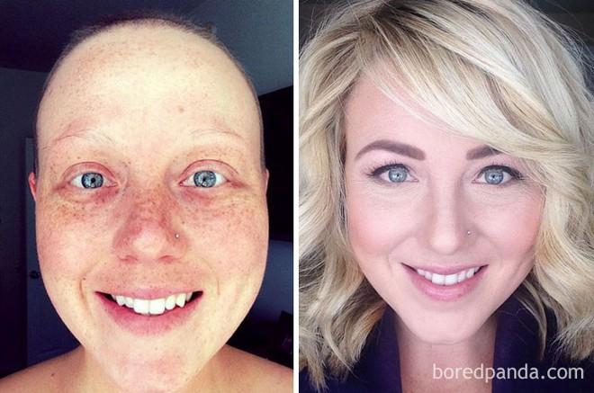 Ngắm 10 bức ảnh có thể truyền cảm hứng mạnh mẽ về bệnh nhân ung thư sau khi chữa khỏi - Ảnh 2.