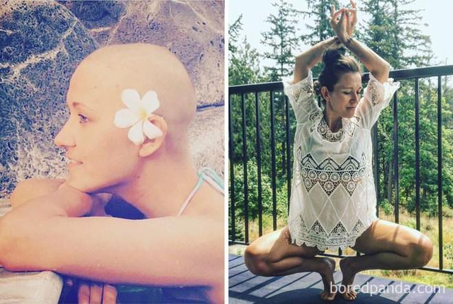 Ngắm 10 bức ảnh có thể truyền cảm hứng mạnh mẽ về bệnh nhân ung thư sau khi chữa khỏi - Ảnh 8.