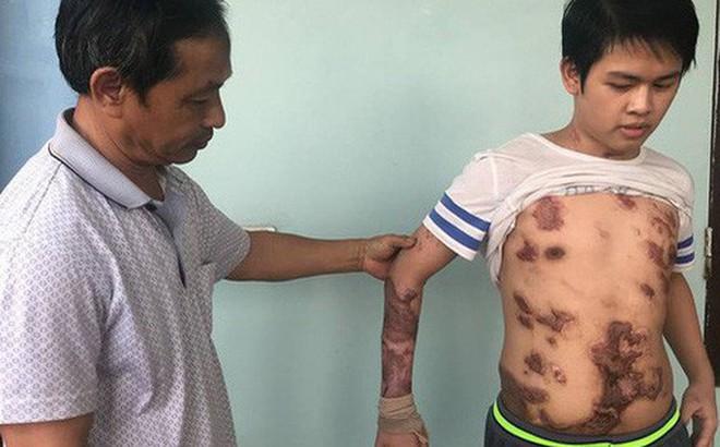 Cậu bé 16 tuổi sống sót sau vụ cháy xưởng bánh kẹo khiến 8 người tử vong ở Hà Nội bây giờ ra sao