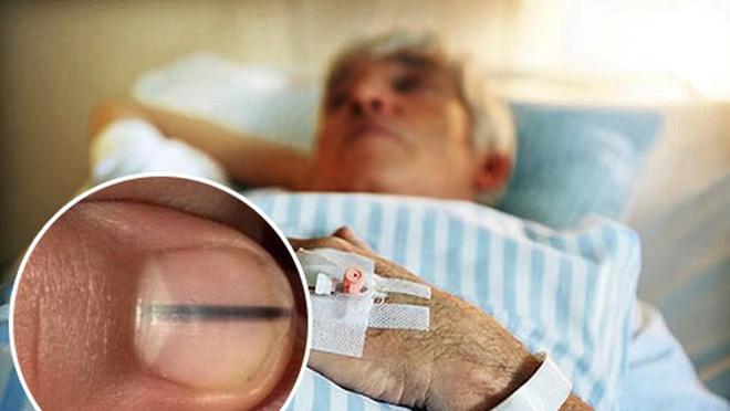 Cảnh giác ngay khi thấy trên móng tay có dấu hiệu bất thường này - Ảnh 2.