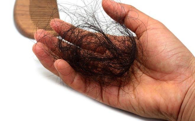Chẩn bệnh qua mái tóc
