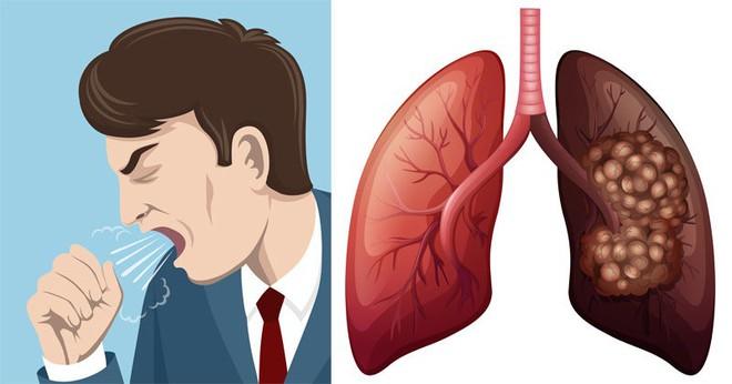 Dấu hiệu điển hình của ung thư phổi: Biết sớm để giành lại cơ hội sống cao nhất là 49%  - Ảnh 2.