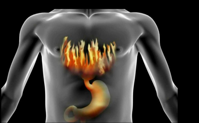 TS Mỹ bật mí 6 cách giảm ợ nóng và trào ngược dạ dày, từ đó ngăn ngừa ung thư