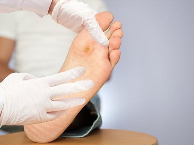 Ngâm chân bằng nước lá, nhiều bệnh nhân tiểu đường hoại tử chân phải cắt bỏ - Ảnh 1.