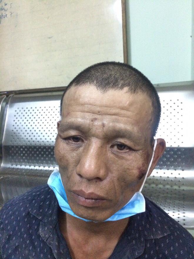 Bị truy đuổi, 2 tên cướp dùng dao chống trả cảnh sát đặc nhiệm trên phố Sài Gòn - Ảnh 3.