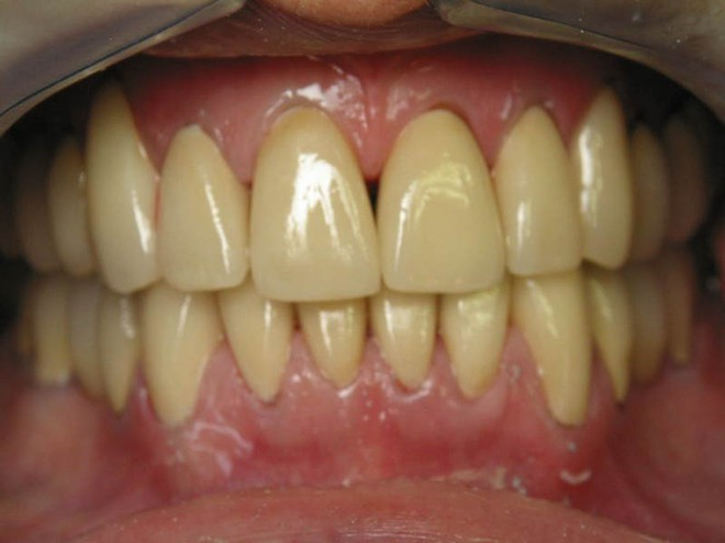 11 cách đơn giản ngay tại nhà giúp răng ố vàng trở nên sáng bóng  - Ảnh 1.