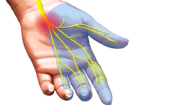 Bác sĩ cảnh báo 4 dấu hiệu sớm của bệnh cục máu đông - thủ phạm chính gây đột quỵ, đột tử