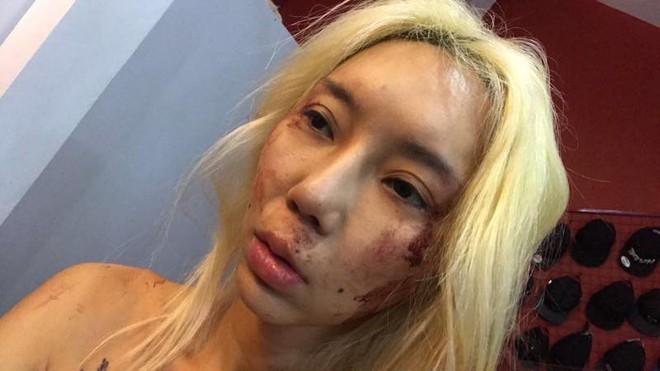 Bị bạn trai đánh đập, nữ DJ nổi tiếng livestream cầu cứu - Ảnh 3.