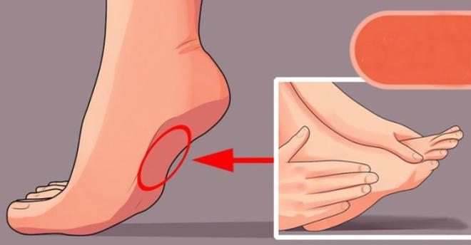 3 đặc điểm trên bàn chân mật báo những căn bệnh tiềm ẩn, đừng để bệnh nặng bạn mới biết - Ảnh 3.