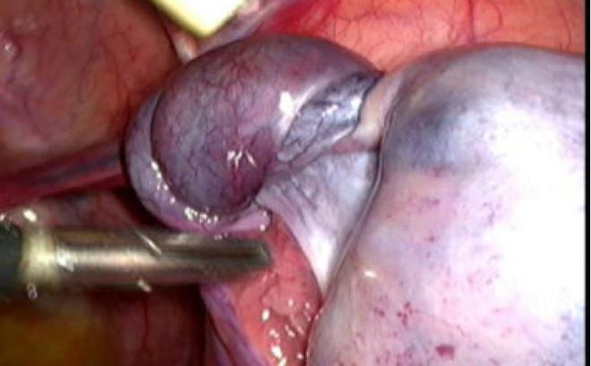 Cấp cứu tưởng đau ruột thừa, ai ngờ bé gái 10 tuổi bị u buồng trứng xoắn