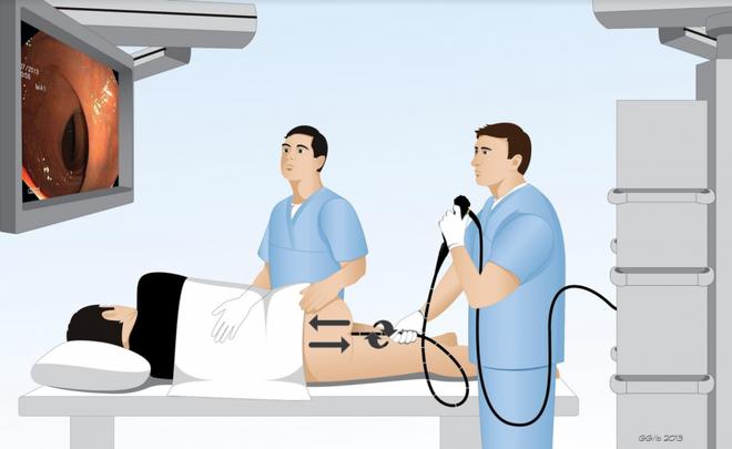 Xét nghiệm mới có thể phát hiện các nguy cơ tiềm ẩn của ung thư đại tràng - Ảnh 2.