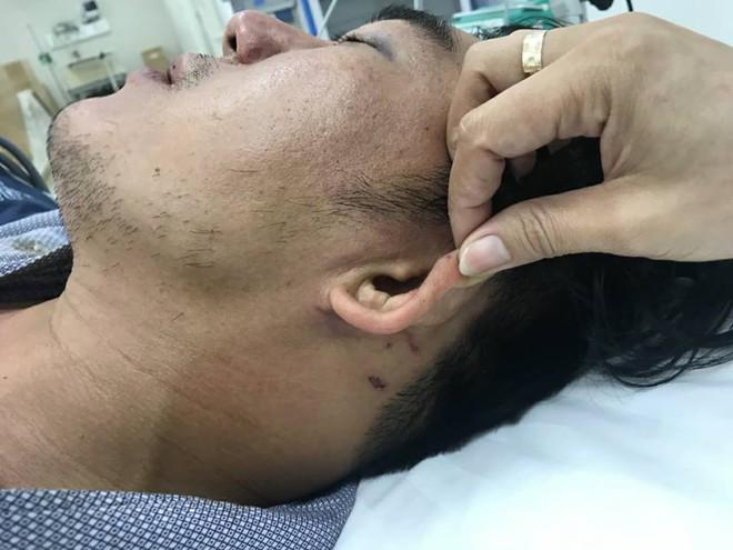 Khách tố bị đánh dã man vì đòi hóa đơn đỏ, công an bảo bị té ngã dẫn đến chấn thương - Ảnh 3.