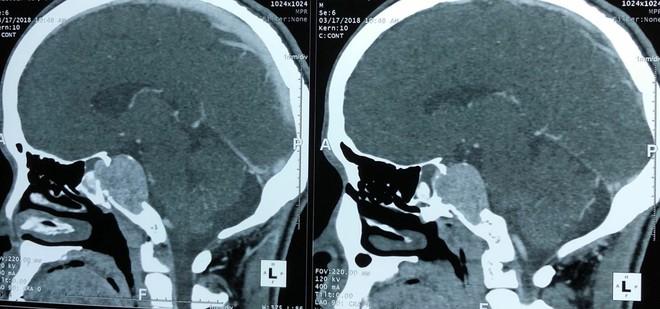 Cảnh báo: Chủ quan với bệnh đau đầu, đi khám phát hiện khối u não lớn - Ảnh 1.