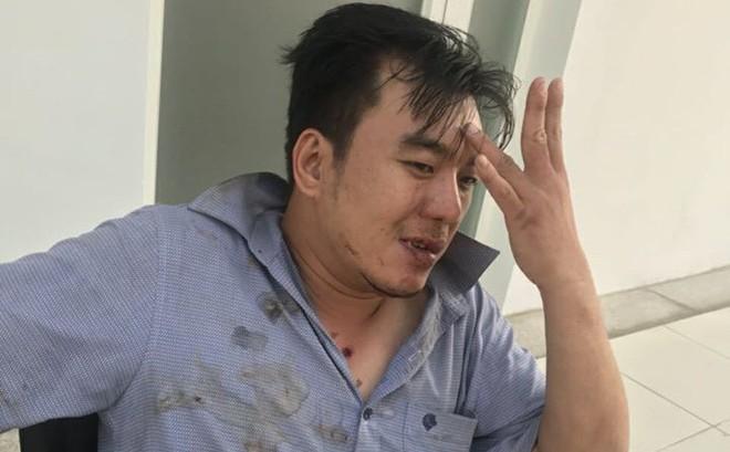 Khách tố bị đánh dã man vì đòi hóa đơn đỏ, công an bảo bị té ngã dẫn đến chấn thương
