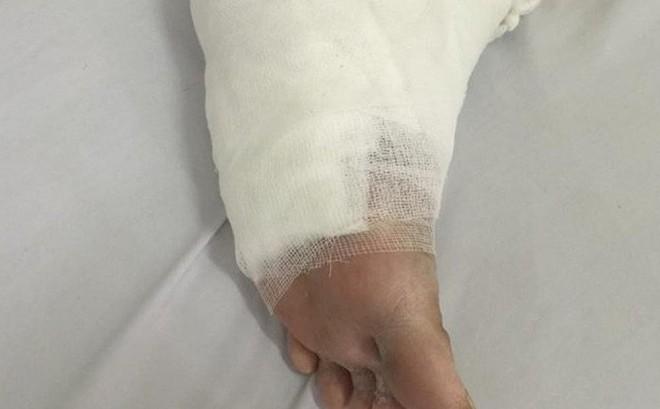 Liên tiếp có bệnh nhân tiểu đường nhập viện vì bỏng nặng do dùng đèn sưởi đá muối
