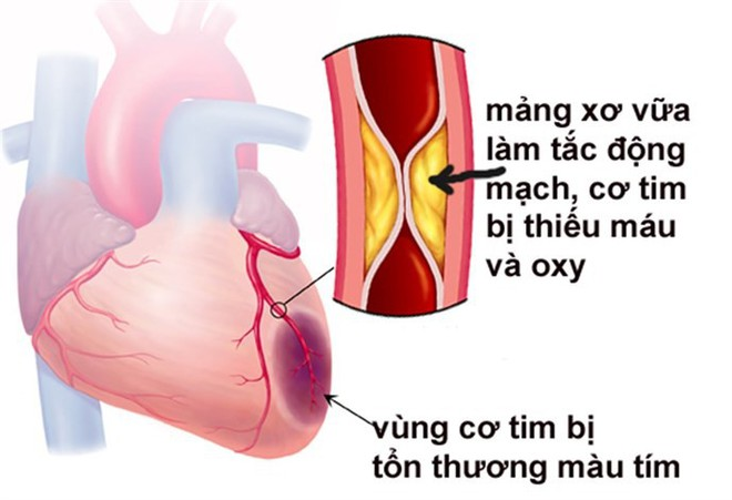 Chuyên gia tim mạch giúp phân biệt nhồi máu cơ tim và tai biến mạch máu não - Ảnh 2.
