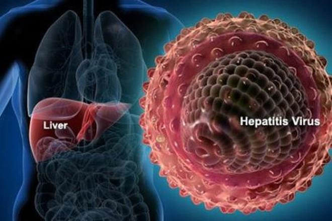 Ung thư gan: 17 nghìn người chết mỗi năm và 6 nguyên nhân cần nhớ - Ảnh 2.