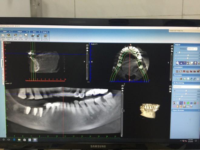 Hiếm có khó tìm: Cụ bà ở Vĩnh Phúc 91 tuổi vẫn đi cấy ghép răng để... ăn cho ngon miệng - Ảnh 3.