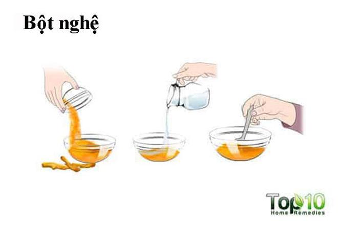 Cách chữa bong gân ngón tay dễ dàng nhất - Ảnh 7.