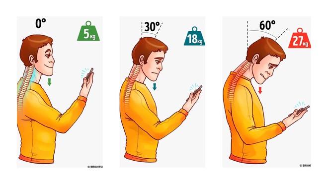 10 cấp độ thoái hóa đốt sống cổ: Hãy xem bạn bị mức mấy để xử lý trước khi bệnh nặng lên - Ảnh 3.