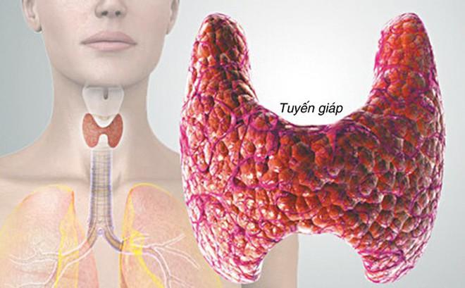 Trưởng khoa Ung bướu BV Tai Mũi Họng TW: Nam giới sờ thấy u ở vị trí này có thể bị ung thư