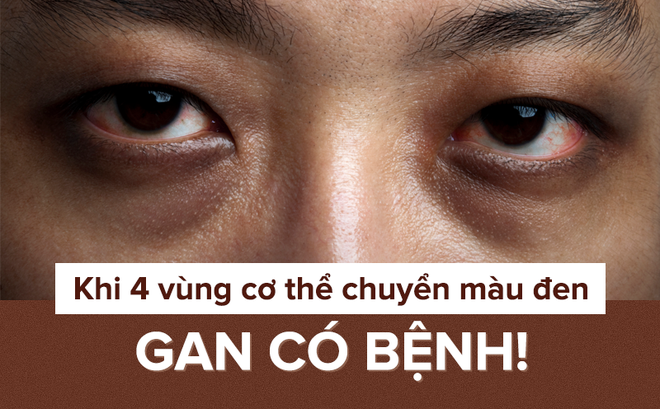 Khi 4 bộ phận cơ thể chuyển màu đen: Hãy thận trọng với dấu hiệu bệnh gan đang phát triển