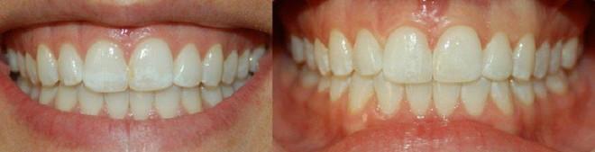 Đề cao cảnh giác với ung thư và bệnh tim nếu răng miệng xuất hiện những dấu hiệu này - Ảnh 4.