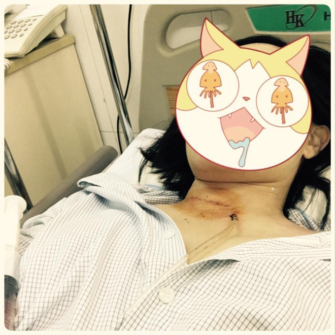 Vợ vừa nhập viện vì khối u ở cổ, chồng lại nối gót theo, nhưng sự trùng hợp chưa dừng ở đó - Ảnh 1.