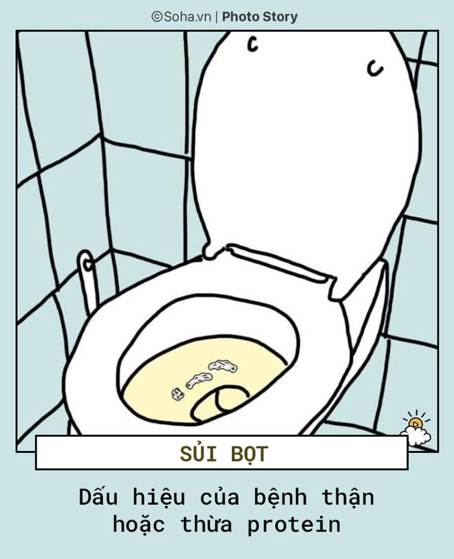 Tự khám bệnh qua màu sắc nước tiểu: Tất cả mọi người nên biết để phòng bệnh hiệu quả - Ảnh 5.