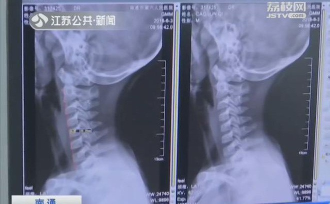 Cảnh báo: Bé 9 tuổi biến dạng xương cổ do xem điện thoại, cha mẹ phát hiện thì đã quá muộn