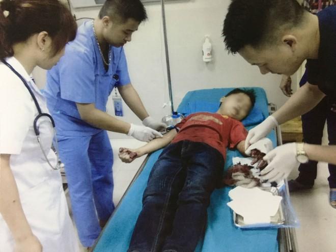 Xót thương bé trai 12 tuổi đứt lìa ngón tay, do giúp bố mẹ băm rau bằng máy thái chuối - Ảnh 1.